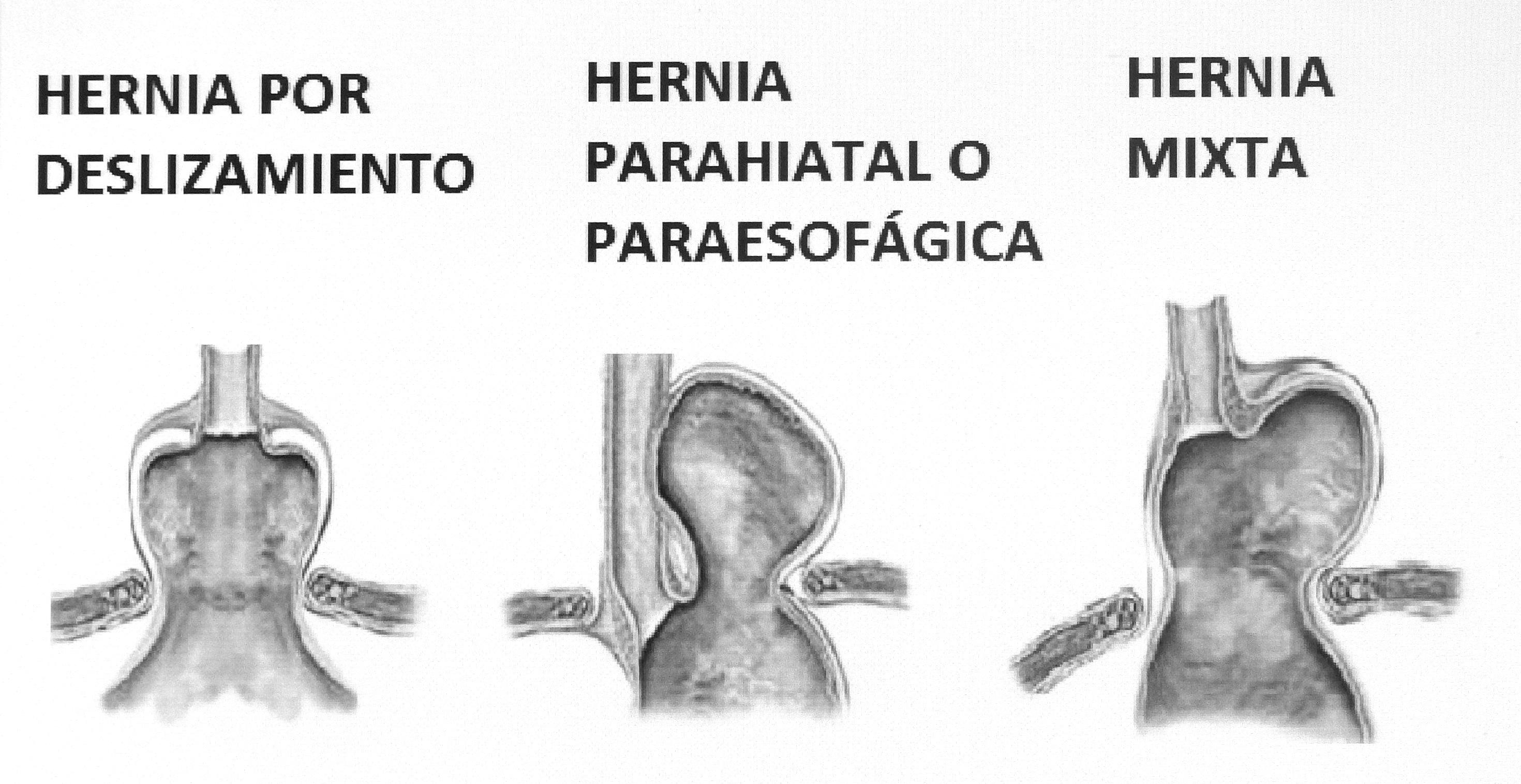 Hernia carlosteopata - Alimentos prohibidos para la hernia de hiato ...
