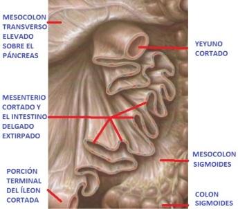 mesenterio-5-638